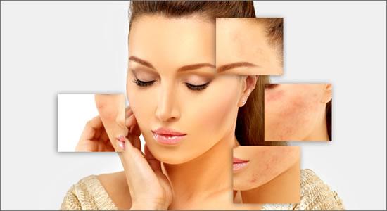 beneficios de celulas madre para la piel